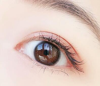 佩戴隐形眼镜的危害 (1).jpg