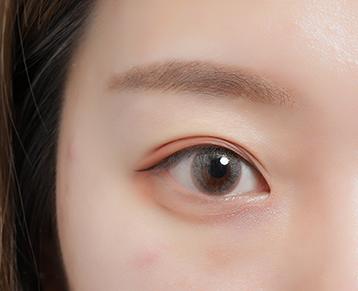长期戴隐形眼镜的危害.jpg