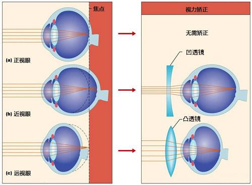 近视与远视的区别.jpg